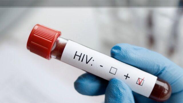 Rośnie liczba zakażonych wirusem HIV w Polsce