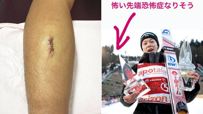 Kuriozalna kontuzja Ryoyu Kobayashiego. Zranił się o trofeum za Willingen Five