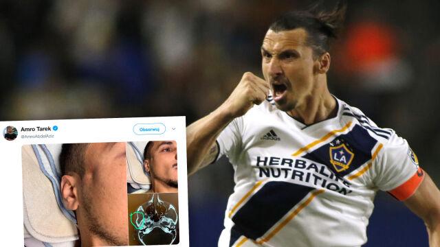 Od bohatera do antybohatera. Ibrahimović złamał rywalowi kość policzkową