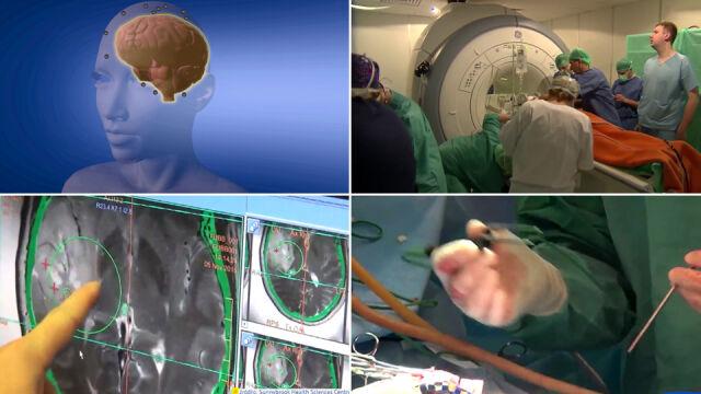 Rewolucja w leczeniu raka. Podali lek wprost do mózgu