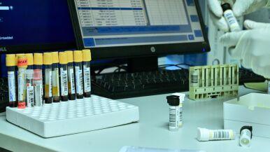 WADA: pandemia utrudnia walkę z dopingiem, ale jej nie paraliżuje