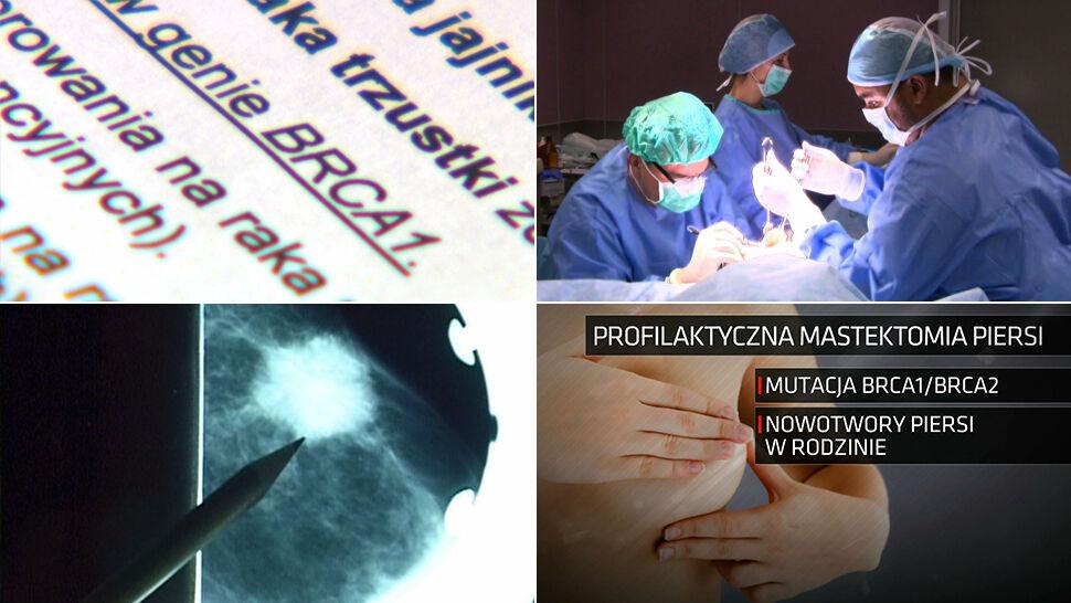 Profilaktyczne usunięcie piersi będzie refundowane. Nadzieje i obawy